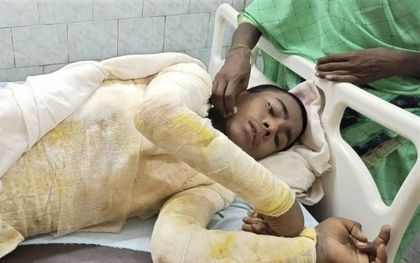 De 16-jarige Nitish Kumar liep bij een aanval door vermoedelijke hindoe-extremisten enorme brandwonden op.beeld Morning Star News