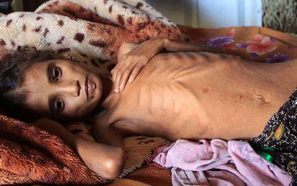 Humanitaire crisis in Jemen. beeld AFP, ESSA AHMED