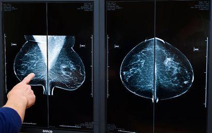 Een radioloog bekijkt röntgenfoto's bij een bevolkingsonderzoek naar borstkanker. beeld ANP, Koen Suyk