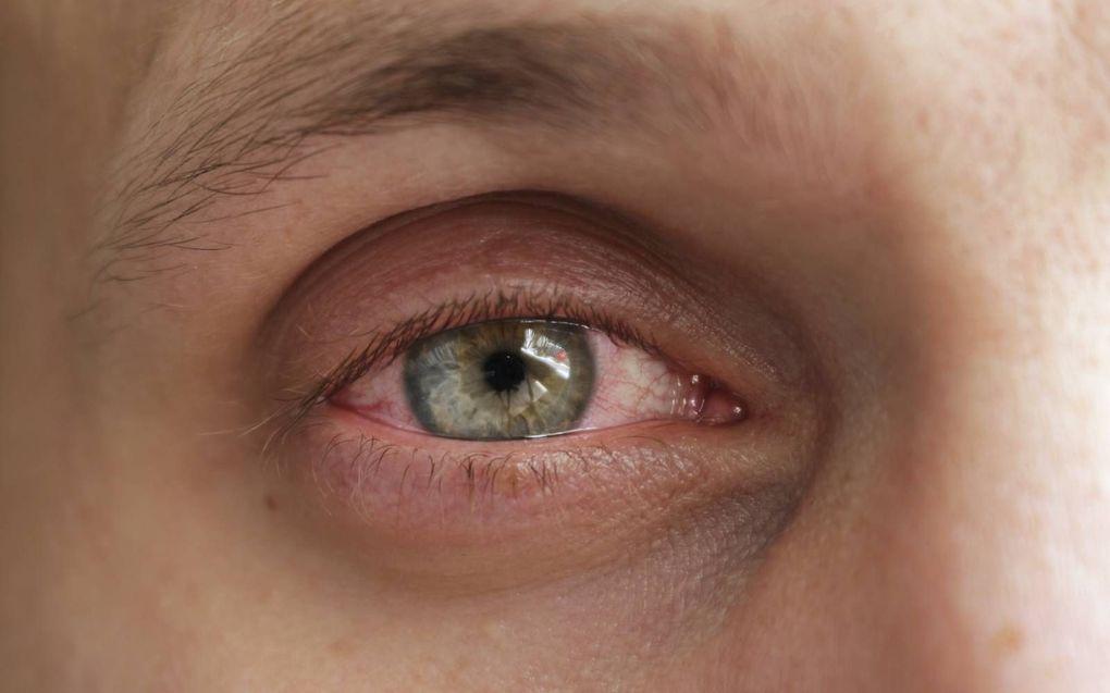 Een coronabesmetting kan een rood oog veroorzaken. beeld iStock