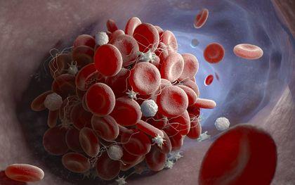 Onderzoekers van het Maastricht UMC hebben twee experimentele geneesmiddelen in handen die bloedstolsels bij coronapatiënten kunnen voorkomen en zo levens kunnen redden.beeld iStock